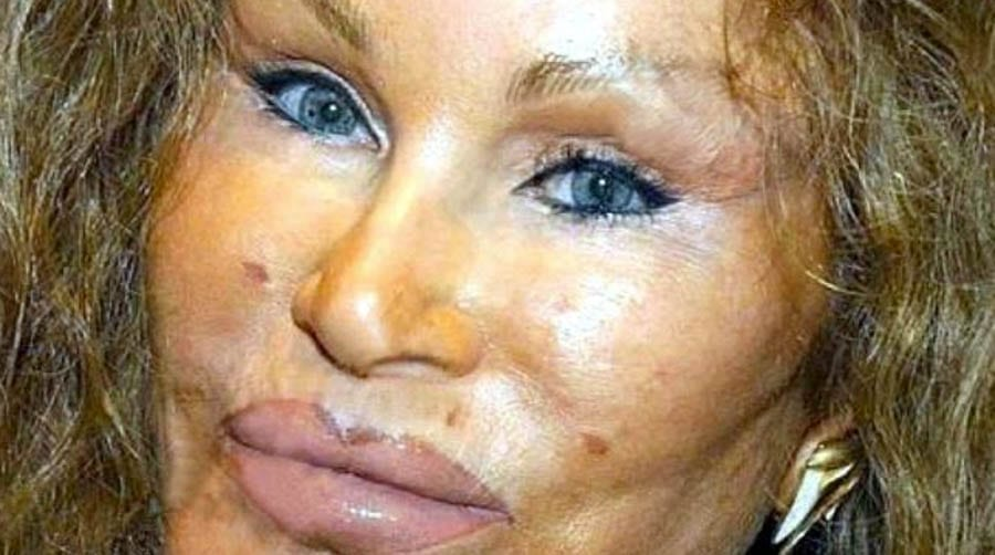 Trumping Wildenstein – Home of Bride of Wildenstein Jocelyn Wildenstein for sale after her fight with ex-boyfriend Lloyd Klein – Apartment 51ADE, 845 United Nations Plaza #37-B, Turtle Bay, New York, NY 10017, United States of America – For sale for £10.36 million ($12.95 million, €12.08 million or درهم47.56 million) through Douglas Elliman