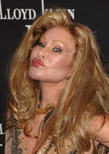 Jocelyn Wildenstein 370 1